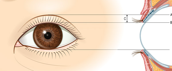 eyelidcorrection600